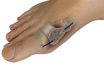 Minimally Invasive Chevron and Akin (MICA) procedure for bunions