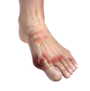 Arthritis of Foot