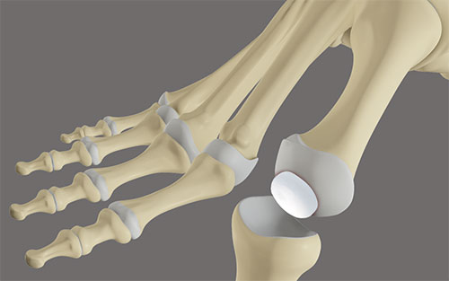 Cartilage Replacement Implant surgery for the Rigid Big Toe